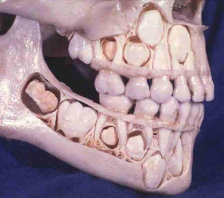 Czaszka dziecka przed wypadaniem zębów mlecznych